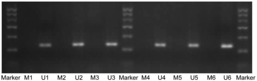 Detection of methylation status in the TGF-β3 gene promoter by methylation-specific polymerase chain reaction. Marker, 100–600 bp; M, methylation band (138 bp); U, nonmethylated band (141 bp); 1–3, GD13.5, GD14.5, and GD15.5, respectively, in the control group; 4–6, GD13.5, GD14.5 and GD15.5, respectively, in the TCDD group. TGF-β3, transforming growth factor-β3; GD, gestation day; TCDD, 2,3,7,8-tetrachlorodibenzo-p-dioxin.