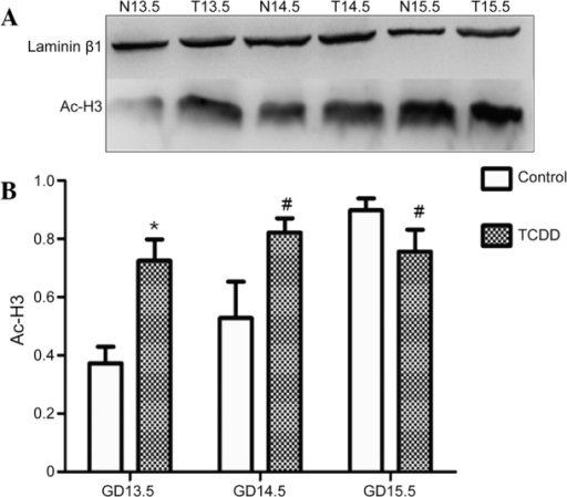 Detection of Ac-H3 in the TCDD and control groups by western blotting. (A) Representative blot. (B) Statistical analysis of the acetylated histone H3 level. Data are presented as the mean ± standard deviation. *P<0.01 and #P<0.05 vs. the control group. N, control group, T, TCDD group. Ac-H3, acetylated histone 3; GD, gestation day; TCDD, 2,3,7,8-tetrachlorodibenzo-p-dioxin.