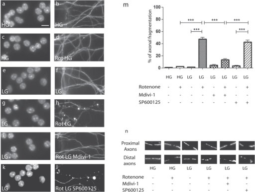 Local pharmacological inhibition of mitochondrial fission prevented axonal damage.(a–l) Paired morphology panel of DIV10 CGN in microfluidic chambers. The somatic chamber was probed with Hoechst nuclear staining (a,c,e,g,i,k) and axonal endings in the axonal chamber immuno-stained with beta3-tubulin (b,d,f,h,j,l). (a,b), 10 DIV CGN grown in high glucose (HG) conditions. (c,d) Application of axonal rotenone (Rot HG) in the axonal chamber did not trigger axonal degeneration in HG condition after 24 hours of treatment. (e,f) Low glucose (LG) condition was innocuous. (g,h) Application of axonal rotenone in LG triggered axonal degeneration. (i,j) Application of 10 μM Mdivi-1 on axons inhibited the action of rotenone, but 10 μM SP600125 did not (k,l). (Scale bar: 10 μm). (m) Quantification of axonal degeneration. Each experiment was conducted at 3 times independently in triplicates and data were analyzed using ANOVA statistical method. (n) Representative images of both proximal (somatic chambers) and distal (axonal chamber) axonal mitochondrial morphology upon TOM20 immunostaining after rotenone insult and pharmacological blockade.