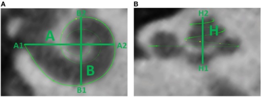 (A) Cochlear dimensions estimated from CBCT. A and B values in CBCT data as clinically derived measures. (B) Height (H) of the cochlea starting from the lowest basal point to the apex (Helicotrema).