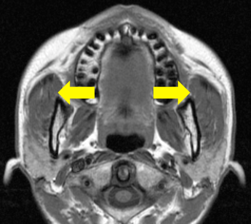 Horizontal section in MRI. Overhang of masseter muscle along the anterior border of mandibular ramus (yellow arrow). (For interpretation of the references to color in this figure legend, the reader is referred to the web version of this article.)