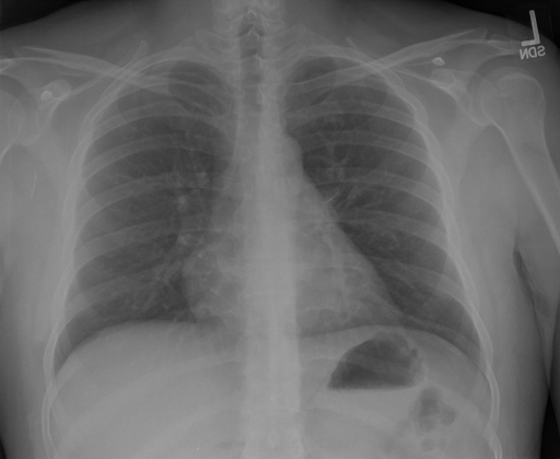 Chest radiograph PA and lateral.