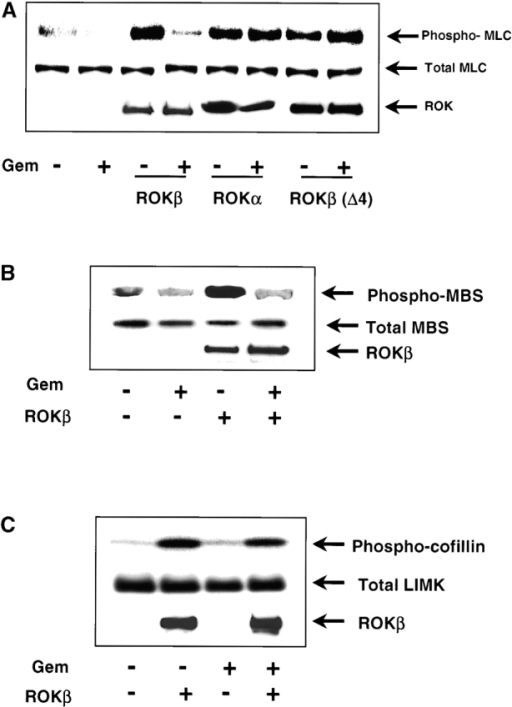 Effect of Gem on ROK activity. (A) Gem inhibits ROKβ- but not ROKα-dependent phosphorylation of MLC. Cos7 cells were transfected with flag-tagged MLC and myc-tagged ROKα, ROKβ, or the constitutively active kinase domain of ROKβ. The ability of Gem to inhibit MLC phosphorylation was demonstrated by cotransfection with full-length wild-type Gem. Western blots generated with antibodies specific for MLC phosphorylated on serine 19, total transfected MLC detected with antiflag antibodies, or ROK detected with anti-myc antibodies are shown. (B) Gem-mediated inhibition of MLC phosphatase phosphorylation by ROKβ was demonstrated by transfection of the MBS into Cos7 cells together with ROKβ and/or Gem. Western blots generated with antibodies specific for MBS phosphorylated on threonine 695 as well as total MBS and ROK are shown. (C) Gem has no effect on ROKβ-dependent LIMK activation. HA-tagged LIMK was cotransfected into Cos7 cells with ROKβ and/or Gem and then immunoprecipitated using anti-HA antibody. An in vitro kinase assay was performed using cofilin and [γ32P]ATP as substrates for the phosphoryl transfer. Phosphorylated cofilin was revealed by autoradiography and ROK protein levels were assayed by Western blots.