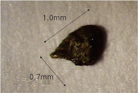 Photograph of the removed intralenticular metallic foreign body (1.0×0.7 mm).