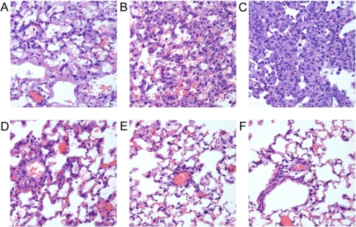PB1-F2 derived peptides cause inflammation and lung pathology.Groups of mice were exposed to a panel of peptides (100 mM final concentration, see Figure 1 for definitions) and euthanized 72 hours later. Lungs were removed, sufflated, sectioned, and stained with hematoxylin and eosin for histopathologic evaluation. Representative 40× sections are shown from mice exposed to peptides derived from the PB1-F2 protein of A) PR8, B) H1N1 1918, C) H2N2 1957, D) H5N1 2004, E) H3N2 1995, or F) no peptide control.