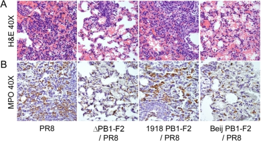 PB1-F2 contributes to influenza virus mediated immunopathology.Groups of mice were infected with a panel of viruses as indicated (see methods for definitions) and euthanized 72 hours post-infection. Lungs were removed, sufflated, sectioned, and examined for histopathology following A) staining with hematoxylin and eosin or B) application of an antibody specific for MPO followed by a horse-radish peroxidase-conjugated secondary antibody, staining with chromagen DAB, and counterstaining with hematoxylin.