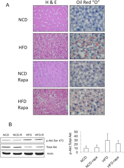 "Histologic and biochemical effects of rapamycin on HFD-induced steatosis.A) Examples of histology (H&E) and Oil Red ""O"" staining of the livers procured from animals described in Figure 4. NCD, normal chow diet; HFD, high-fat diet; Rapa, rapamycin. Magnification, 400X. B) Western blots of representative liver lysates from each of the four groups shown in (A) highlighting the effects of chronic rapamycin on Akt(Ser473) phosphorylation. The average ratios of band intensities (Image J) between phospho- and total-Akt are summarized in the graph (n of 5 per group)."