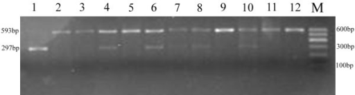 The representative electrophoretic gel featuring the RFLP analysis of TRB3 Q84R polymorphism. The PCR products were digested with MspІ followed by 2% agarose gel electrophoresis: the resulting wild-type (QQ) samples contained one band sized 593 bp, heterozygotes (QR) samples contained two bands sized 593 bp and 297 bp and homozygotes (RR) contained one band sized 297 bp. M: 100 bp DNA marker; 1: RR genotype; 2,3,5,9,11,12: QQ genotype; 4,6,7,8,10: QR genotype.