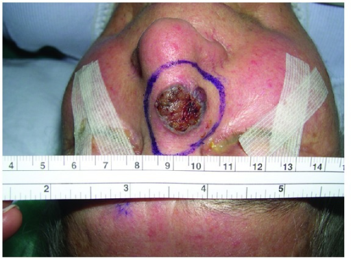 Recurrent BCC in the nose.