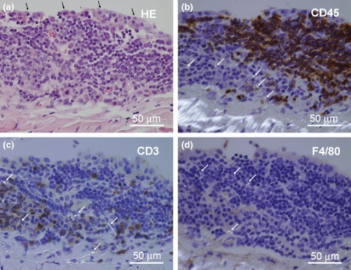 Immunohistochemistry of lentiform mononuclear cell accumulation underlying the atypical mesothelial hyperplasia. (a) Serial section of an atypical mesothelial hyperplasia of the tendinous portion of the diaphragm of a mouse in the low-dose group (sampled at terminal kill). (a) Hematoxylin–eosin staining. Black arrows: hobnail appearance of the hyperplastic mesothelial cells. (b–d) Polarized image of the serial sections immunohistochemically stained for cd45, cd3 and F4/80. Multi-wall carbon nanotubes (birefringent; white arrows) are seen in the macrophage-like cd45/cd3-negative, F4/80-faintly positive cell cytoplasm. It is noted that epithelioid cell granuloma and fibrous scars are absent in this type of lesion.