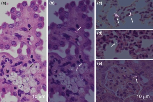 Systemic distribution of singular fibers. Single micrometer-sized multi-wall carbon nanotube fibers are found in the choroid plexus in (a) normal lighting and (b) polarized light (in a mouse from the high-dose group sampled on day 168), (c) lung as an agglomerate within macrophages (polarized light) or (d) as singular fibers (polarized light) and (e) a renal glomerulus (polarized light) (in a mouse from the high-dose group sampled on day 197). Fibers were also found in hepatic sinusoids and mesenteric lymph nodes (not shown).