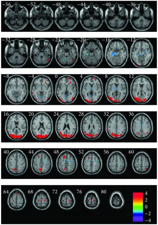 fMRI images of regions showing increased or decreased activities in entire brain of Alzheimer's disease patients after acupuncture compared with the resting state. Left in picture is left in the brain. The color scale represents t values [60].