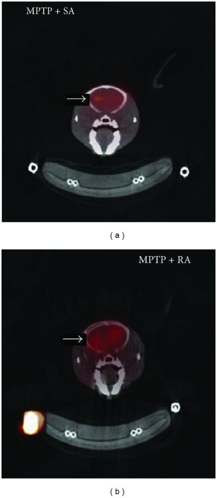 [123I]IBZM-SPECT images of the acupuncture-treated MPTP-induced Parkinson's disease mice. The left is sham acupuncture (SA) group, and the right is retained acupuncture (RA) group. The intensity of radionuclide or radiopharmaceutical uptake in RA group is higher than that in SA group [65].