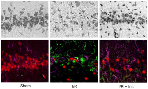 Insulin prevents neuronal cell death in the CA1 hippocampus following brain ischemia.Cresyl violet stained sections (top row) show CA1 hippocampus densely populated with pyramidal neurons in sham-operated controls (Sham), and triple-label immunofluorescence (bottom row) shows these cells to be NeuN-positive (red). After 8 min of global brain ischemia followed by 14 days of reperfusion (I/R, n = 5) there is a 90% loss of CA1 neurons and an increase in Iba-1-positive microglia and GFAP-positive astrocytes (green and magenta, respectively). Animals exposed to 8 min of ischemia followed by 14 days of reperfusion with a single bolus of insulin given at the onset of reperfusion (I/R + Ins, n = 4) demonstrate a 49% increase in NeuN-positive neurons (p < 0.05) while Iba-1 and GFAP-positive cells remain unchanged.
