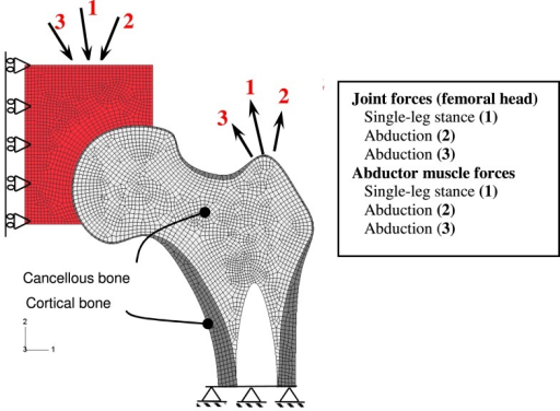 FE of the proximal femur and boundary conditions.