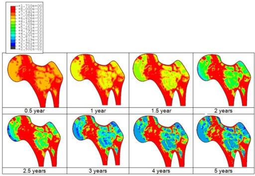 Predicted bone adaptation sequences in the form of apparent bone density variation in gram per cubic centimeter.