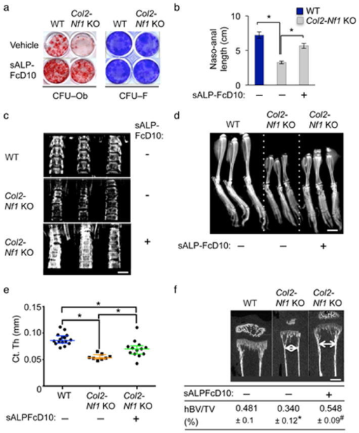 sALP–FcD10 improves bone growth and cortical bone parameters in growingCol2-Nf1 KO mice(a) BMSC matrix mineralization (CFU–Ob) and number (CFU–F)analyzed by Alizarin red–S and crystal violet staining, respectively (n= 3) following vehicle or sALP–FcD10 treatment for 2 weeks.(b–f) Bone growth (b, naso–anal length),vertebral (c, bar: 250 μm) and tibial (d, bar: 250μm) bone mineral density (X–rays), cortical thickness (e,Ct.Th, μCT), epiphyseal diameter (f, white arrow, bar: 45 μm,μCT) and hypertrophic zone von Kossa–positive calcified Bone Volume/TissueVolume (hBV/TV, histology) in Col2-Nf1 KO newborn pups treated daily bysALP–FcD10 for 18 days (n > 8 mice/group).*:p < 0.05 versus WT; #:p < 0.05versus vehicle in the same genotype group.