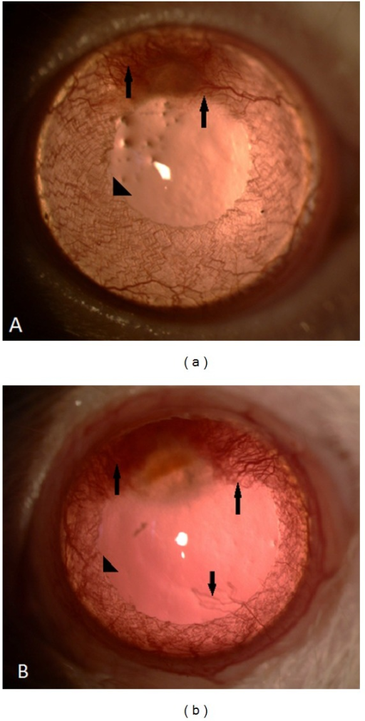 Biomicroscopic corneal findings of the cornea 7 days after induction of corneal burn in eyes. Arrows describe corneal neovascularizations; arrowheads describe the vessels of albino-rat iris. (a) An example of tigecycline-treated eyes. Presence of fewer vessels on the cornea than in control group. (b) An example of control eyes.