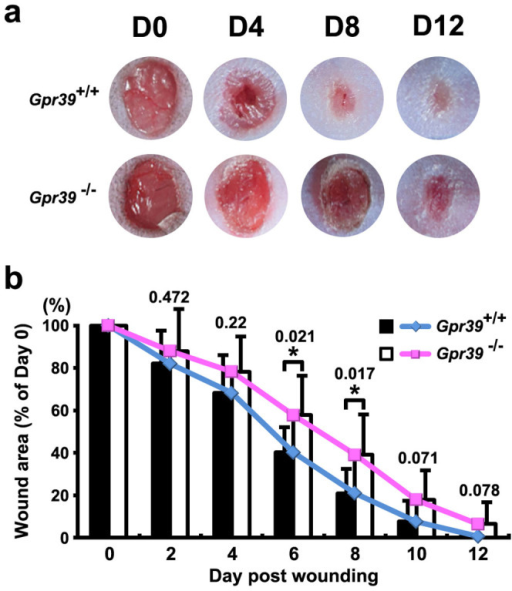 Wound healing assay in Gpr39+/+ and Gpr39−/− mice.(a) Images of wound areas in Gpr39+/+ and Gpr39−/− mice on different days after wounding, with the same magnification. (b) Statistical analysis of wound size change in both Gpr39+/+ and Gpr39−/− mice. The P value for each comparison is labelled above the columns. The data present the means ± SEM, and the asterisks indicate statistically significant differences with a P value < 0.05.