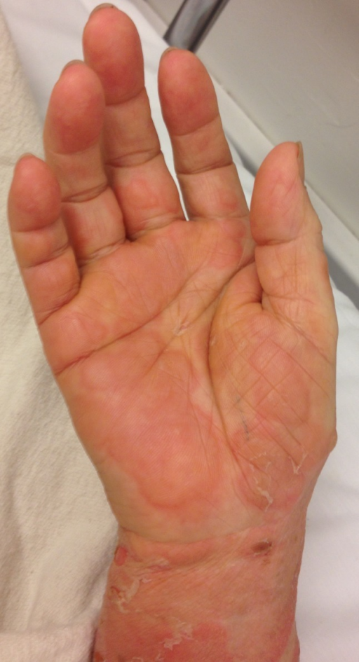 Skin findings include tense bullae on erythematous bases, pruritic plaques on the hands, and urticaria.