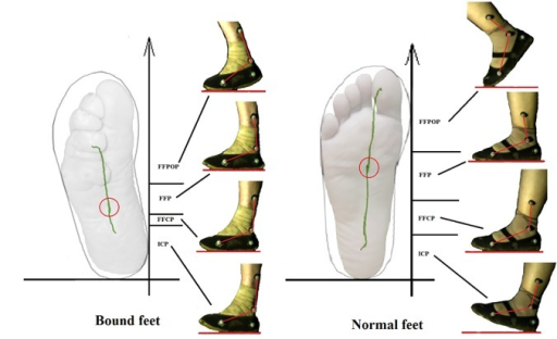 The center of pressure (CoP) trajectory of bound feet (left) and normal feet (right) (ICP represents Initial Contact Phase, FFCP represents Forefoot Contact Phase, FFP represents Flat Foot Phase and FFPOP represents Forefoot Push Off Phase; the circle indicates the location of CoP while stance phase.)