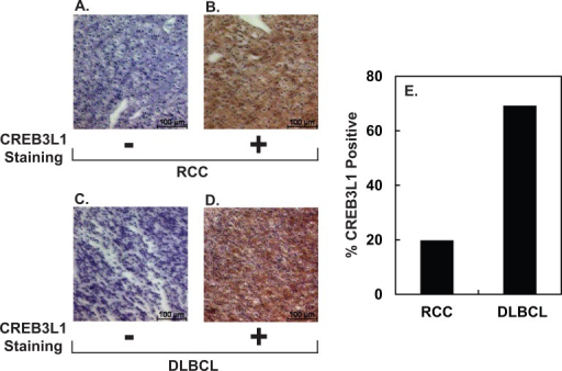 CREB3L1 expression in RCC and DLBCL.(A-D) Representative IHC images of sections of the indicated tumors stained negatively or positively with anti-CREB3L1. Scale bar: 100 μm. (E) Percentage of indicated tumors stained positively with anti-CREB3L1.