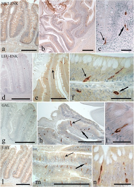 "Immunoreactivity of the endocrine cells within the intestine of Squalius cephalus to met-enkephalin (a-c), leu-enkephalin (d-f), galanin (g-i), and to serotonin (l-n) antisera. The sections taken from the mid-guts of uninfected hosts (a, d, g, l) always have a lower number of immunopositive endocrine cells than those infected with the acanthocephalan Pomphorhynchus laevis (b, e, h, m). Both the open type (thin arrows) and closed type (thick arrows) immunoreactive endocrine cells can be seen (c, f), together with the open type immunoreactive endocrine cells that possess a mid-epithelial body (i), or with those that appear ""reservoir-like"" (n; see Results section). Scale bars: a, b, d, e, g, h, l, m: 100 μm; c, f, I, n: 20 μm"