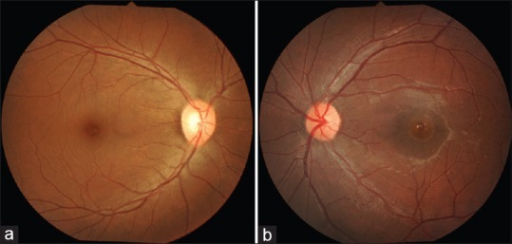 (a) Fundus photograph OD - showing normal fundus (b) fundus photograph OS - showing full thickness macular hole