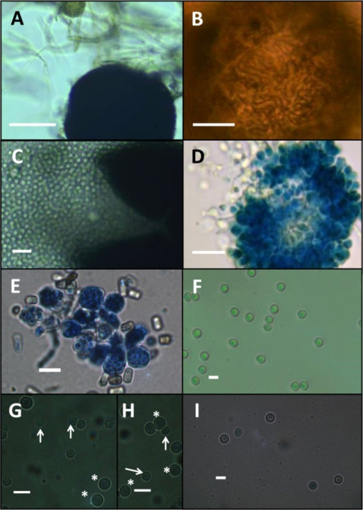 Scytalidium parasiticum ex-type culture AAX0113 elucidating mature and immature ascomata (A); ornamentation on sexual fruiting body (B); ascospores from fruiting body (C); cluster of attached asci stained with lactophenol blue (D); asci stained with lactophenol blue (oil immersion objective) (E); and ascospores (F). G~H, Ascospores of S. parasiticum (arrows) (smaller in size) and S. ganodermophthorum UAMH10321 (asterisks); I, Ascospores of S. sphaerosporum UAMH10840 under oil immersion objective were included to illustrate the differences in sizes (scale bars: A = 30 µm, B~D = 10 µm, E, F = 3 µm, G~I = 5 µm).