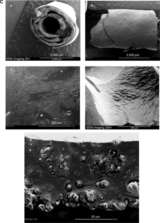 Therapeutic design of PLGA-OP cylindrical implants.Notes: (A) Fabrication of PLGA-OP; (a, b) dissolved suspension of PLGA in acetone containing Span 80 with OP or without as a blank was transferred using a 1 mL glass syringe from a height of 4 cm onto a smooth Teflon sheet to form a flat, circular disk, in a fume hood for 1 hour followed by refrigeration at 5°C overnight; (c) PLGA-OP disk was lifted from the teflon sheet using a razor blade, and (d) rolled onto a glycerol lubricated precision glide 18 gauge syringe tip to form a cylinder; (e) fabricated PLGA-OP cylinders were extracted from the syringe needle and stored at −80°C; (f) surgical implantation of blank PLGA and PLGA-OP at tumor site (image showing PLGA-OP near necropsied live tumor at end point of experiment. (B) Photograph of PLGA-empty and PLGA-OP cylinders. (C) SEM micrographs of PLGA-OP cylinder; (a) micrograph of a single layer cross-section with hollow continuous center throughout the entire PLGA-OP structure, (b) top surface, (c) magnified porous surface structure, (d) magnified surface structure, and (e) magnified internal structure of PLGA-OP showing crystals of OP.Abbreviations: OP, oseltamivir phosphate; PLGA, poly (lactic-co-glycolic acid); SEM, scanning electron microscope.