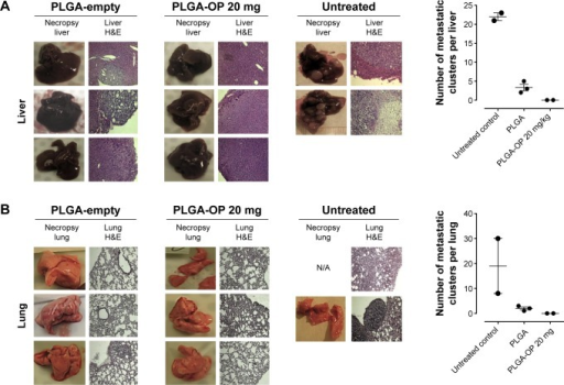 Necropsy liver (A) and lung (B). RAGxCγ double mutant mice were implanted with 0.5×106 PANC1 pancreatic cancer cells subcutaneously on the rear flank and PLGA-empty and PLGA-OP 20 mg cylinders were surgically implanted at day 35 post-implantation when tumors reached 100–120 mm3. Paraffin-embedded tissue sections (5 μm) on glass slides were processed for HE staining for each mouse necropsied at end point of the study. Stained tissue sections were photographed using a Zeiss Imager M2 fluorescence microscope at 400× magnification. Images are representative of at least five fields of view from two tissue sections. Metastatic tissue clusters were microscopically counted per tissue sections (5 μm) and plotted in the graph.Abbreviations: OP, oseltamivir phosphate; PLGA, poly (lactic-co-glycolic acid); RAG, recombinase activating gene.