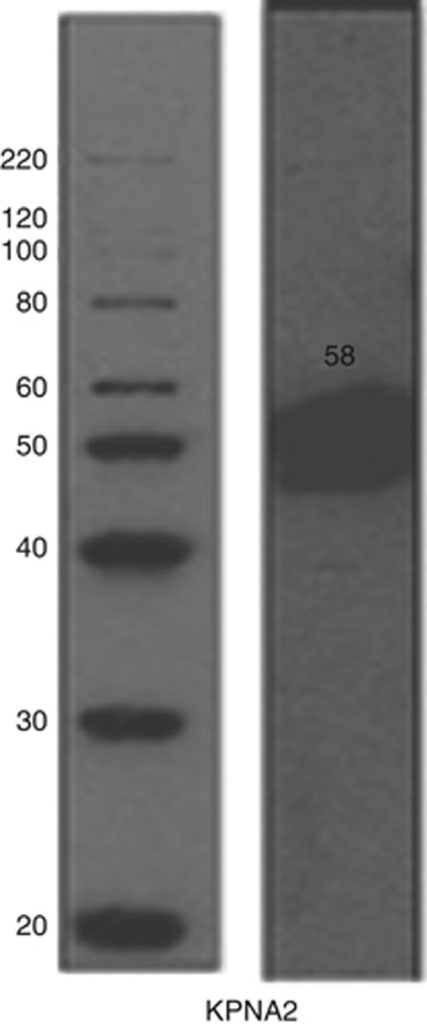 Validation of KPNA2 primary antibody by western blotting. Mixed lysates from MCF7 and MDA-MB-436 cell lines were used.