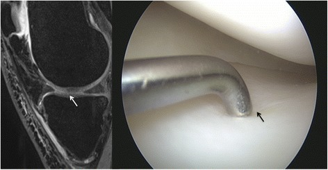 MRI and arthroscopic image of a grade I lesion in an 18-year-old male. The lesion is hardly visible in sagittal source images, coronal reconstructions with a slice thickness of 1.5 mm already miss the grade I lesion