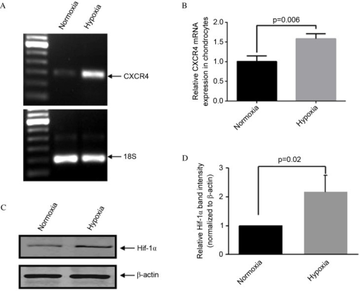 Hypoxia increases CXCR4 expression in human OA chondrocytes. (A and B) Quantitative analysis of CXCR4 gene expression by reverse transcription-quantitative polymerase chain reaction. (C) Western blot of HIF-1α in OA chondrocytes cultured under normoxic or hypoxic conditions (5 or 2% oxygen, respectively). (D) Band intensities obtained from the three individual western blots were quantified using Image J software to generate a bar graph of the relative difference in Hif-1α protein expression levels. Data are presented as means + standard deviation. CXCR4, C-X-C chemokine receptor type 4; OA, osteoarthritis; HIF-1α, hypoxia-inducible factor 1α.
