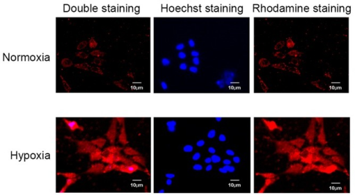 Immunofluorescence images of CXCR4 expression in osteoarthritis chondrocytes cultured under normoxic and hypoxic conditions (5 and 2% oxygen, respectively). Cells were stained with an anti-CXCR4 antibody (rhodamine, red) and with the nuclear binding dye, Hoechst two days later. Staining of CXCR4 was stronger in cells cultured under hypoxic conditions compared with those cultured in normoxic conditions. CXCR4, C-X-C chemokine receptor type 4.