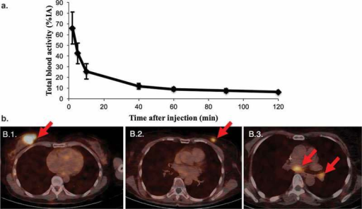 Diagnostic tumor imaging using 68Ga-HER2-nanobody in patients with HER2pos-breast cancer. a. Time-activity curve of total blood activity, expressed in % of injected activity (%IA) (n=20). b. Fusion PET/CT images of the uptake of 68Ga-HER2-nanobody in breast carcinoma lesions. (B.1.) Patient with the highest tracer uptake (SUVmean 11.8) in a primary breast carcinoma. (B.2.) Patient with moderate tracer uptake in the left breast, which is easily discernable from background (SUVmean 4.9). (B.3.) Patient with invaded lymph nodes in the mediastinum and left hilar region. Lesions are indicated by red arrows. Figures are adapted with permission from.[110].