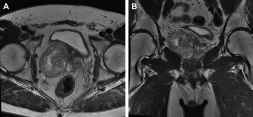 MRI shows a heterogenous mass located in the right prostate lobe.