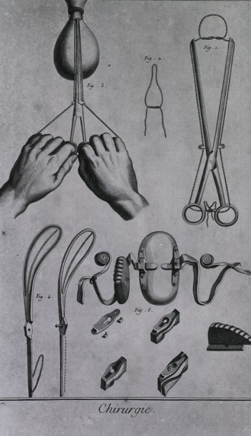 <p>In addition to a demonstration of appyling pressure to a &quot;knot&quot; that runs along a pedicle of a uterine polyp by the wombs orifice, there are instruments invented by Levret, and a &quot;ferre-naud&quot; tweezer.</p>