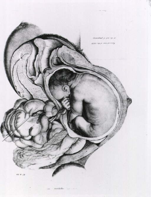 <p>View of the fetus in the uterus.</p>