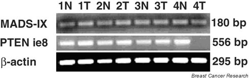 PCR screening of MADS-IX and PTEN on DNA samples from four tumor cell lines and matched normal DNA. Results (first row) show that MADS-IX is present in all the tumor cell lines (HCC-1806, HCC-1143, HCC-1428 and HCC-1937) especially the HCC-1937 cell line, which has loss of a region encompassing the PTEN gene. Screening of PTEN in these four cell lines (second row) show its presence in the HCC-1806, HCC-1143 and HCC-1428 tumor cell lines but, as expected, it is missing in HCC-1937. β-Actin was used as an internal control.