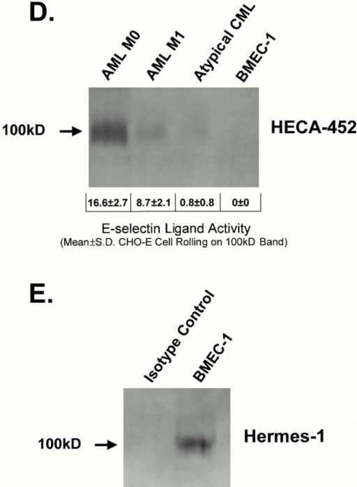 HECA-452–reactive CD44 from freshly isolated normal human HPCs and from human leukemic blasts functions as an E-selectin ligand. (Panel A) HECA-452 staining of CD44 immunoprecipitated from (a) human BM mononuclear cells (108 cells), (b) CD34−/lineage+ cells (107 cells), (c) CD34+/lineage− cells (107 cells), (d) CD34−/lineage+ cells (108 cells). HECA-452 staining of CD44 and CHO-E cell rolling was observable only on the 100-kD CD44 immunoprecipitated from CD34+/lineage− cells (data are mean ± SD cell rolling/field on the 100-kD band). (B) Membrane proteins (50 μg) isolated from circulating blasts from an AML (M5) were resolved on a 9% SDS-PAGE gel and immunoblotted with HECA-452. Treatment of membrane proteins with N-glycosidase F markedly diminished HECA-452 staining. (C) Blot rolling assay results of AML (M5) membrane protein (50 μg) immunoprecipitated with isotype control or with Hermes-1 mAb, and of N-glycosidase F–treated Hermes-1 immunoprecipitates. Though data shown in parentheses is CHO-E cell rolling over the 100-kD band, no rolling was observed over the entire length of the lane corresponding to N-glycosidase F–treated protein. (D) Immunoprecipitated CD44 from membrane preparations (50 μg) of an AML (M0), AML (M1) and atypical CML (brc/abl−), and of human BMEC line (BMEC-1; 100 μg total protein), was separated on a 6% SDS-PAGE gel, immunostained with HECA-452, and evaluated for E-selectin ligand activity. E-selectin ligand activity correlates with intensity of HECA-452 staining of 100-kD band. (E) Western blot of immunoprecipitated CD44 from BMEC-1 stained with Hermes-1 mAb.