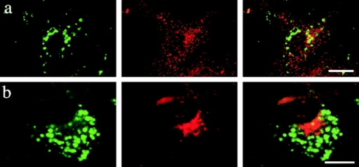Increased expression of PLP does not disturb endosomal compartmentalization. BHK cells were infected with SFV-PLP–myc. 20 h after infection, cells were fixed and double labeled with a monoclonal antibody against LBPA (green), to label late endosomes, and a polyclonal antibody against EEA1 (a, red) or M6PR (b, red). Neither marker colocalizes with late endosomes. Bars, 10 μm.