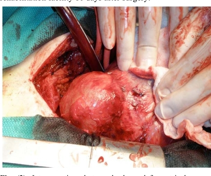 Intraoperative photograph shows left ventricular pseudoaneurysm located in the posterolateral wall of the left ventricle. The pseudoaneurysm was filled with organized thrombus.