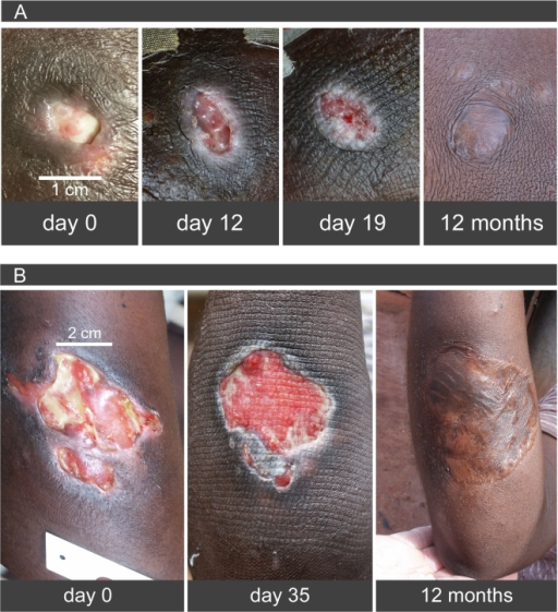 Healing of Buruli ulcers under PCM-based heat treatment and long term results.(A) Patient 2, (B) patient 5: Progress of healing during heat treatment. Note in particular early onset of epithelialisation. Far right follow-up 12 months after completion of heat treatment. Patient 5 (B) after skin grafting.