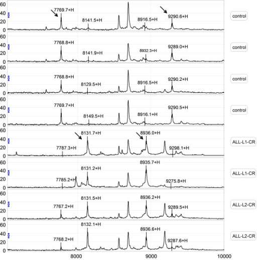 Representative mapping of SELDI-TOF-MS analysis of sera from healthy controls and pediatric ALL patients. Differentially expressed proteins with potential diagnostic significance are indicated by arrows. The top group denotes serum from a healthy volunteer, in which 7769 m/z and 9290 m/z were up-regulated. The bottom group denotes sera from patients with ALL, in which 8137 m/z and 8937 m/z were over-expressed.