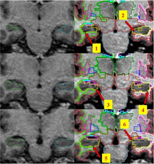 Manual tracing (left) and automated segmentation (right) of the hippocampus showing boundary differences (1 & 6: CSF inclusions; 2 greater subicular/entorhinal inclusion; 4 & 5 greater partial volume inclusion).