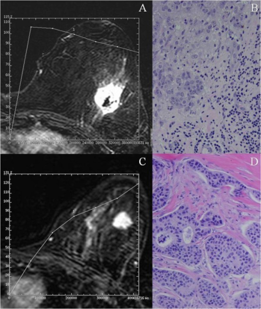 Breast MR image acquired in a 45-years-old patient with a palpable mass in the left upper outer quadrant. The axial postcontrast subtracted image (9.9/4.2; flip angle, 10°) depicts a lesion with irregular margin of mass and heterogeneous enhancement (arrow). The time-signal intensity curve of this shows a type III (washout) curve. (A). Microphotography of the same tumor showing a peritumoral inflammation (arrows). 200×. (B). Breast MR image acquired in a 63-years-old patient with a palpable mass in the left upper outer quadrant. The axial postcontrast subtracted image (9.9/4.2; flip angle, 10°) depicts a lesion of irregular margin of mass (arrow). The time-signal intensity curve of this shows a type I curve. (C). Microphotography of the same tumor showing no a peritumoral inflammation. 100×. (D).