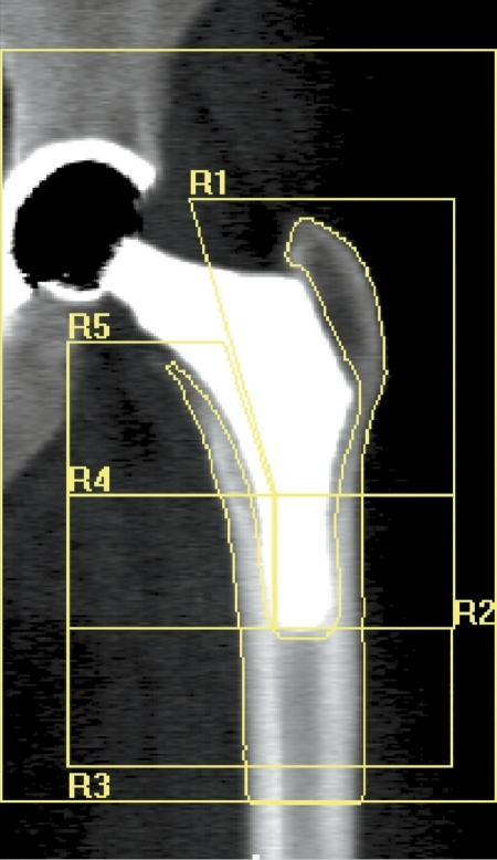 Type 1 custom-made femoral implant featuring an extremely short distal stem. DXA images of the proximal femoral periprosthetic analysis with 5 regions of interest (R1–R5).