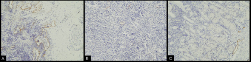 Immunohistochemical staining of D2-40: Immunoreactivity of D2-40 proteins was found in the cytoplasm and cellular membrane of lymphatic endothelial cells. A. Detection of lymphatic vessels in the peritumoral tissue of gastric carcinoma was highlighted by immunostaining against D2-40 (LsAB,×200). B. Immunohistochemical staining of D2-40 in the intratumoral tissue of gastric carcinoma (LsAB, ×200). C. Immunohistochemical staining of D2-40 the normal gastric mucosal tissue (LsAB, ×200).