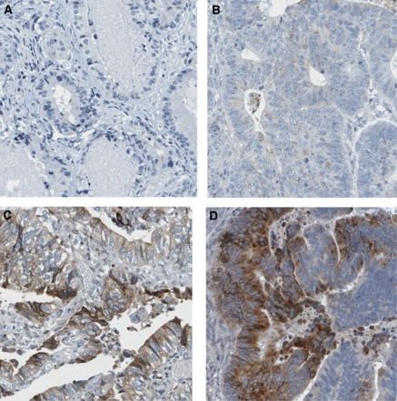 These images represent the four levels of the intensity of immunoreactivity, resulting from immunostaining with GDF15 antibody on primary colorectal cancer tissues. Negative (A), weak (B), moderate (C) and strong intensity staining (D). Images with immunostaining present had 25–75% fraction of positive cells.